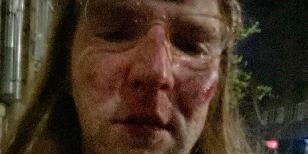 Znów biją. Homofobiczne ataki w Krakowie i w Warszawie